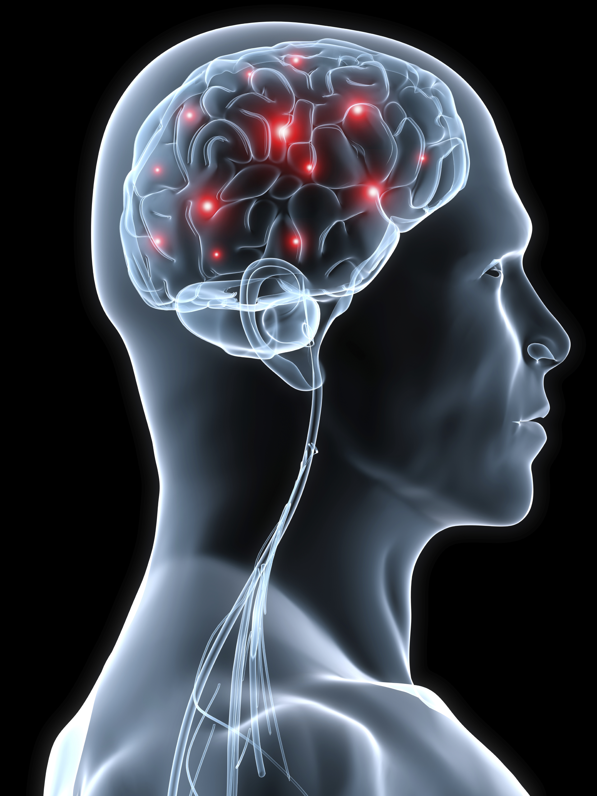 The Brain and Multiple Sclerosis