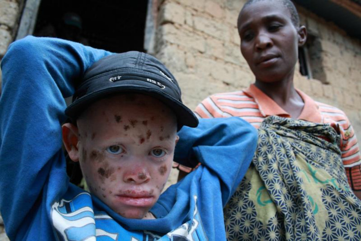 Albinos in Burundi - hunted for body parts